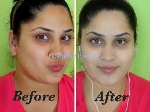 Botswana 100% Nature Cream/Pills Injections 0027734863310 for Skin Lightening Zambia