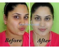 Botswana 100% Nature Cream/Pills Injections 0027734863310 for Skin Lightening Zambia